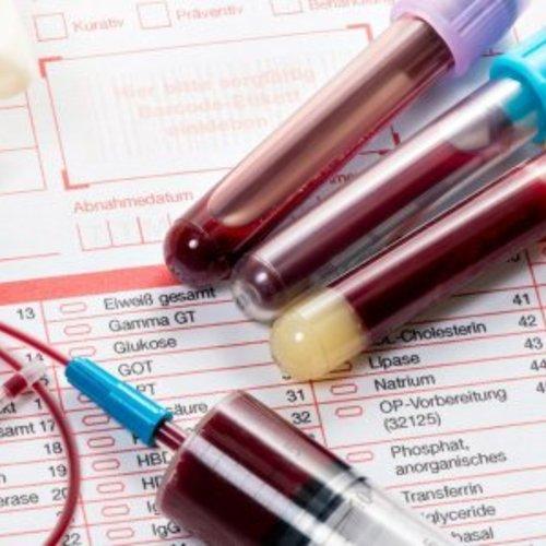 Pachetul tau basic de analize de sange!